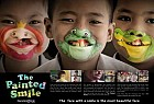 Operation Smile Foundation: The Painted Smile