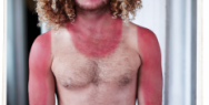 Sun Safety: Sunburn fail